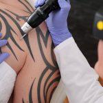 Where you want tattoo